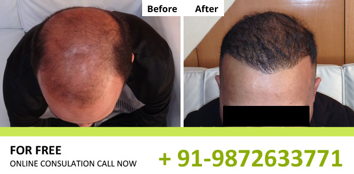 Hair transplant best hair transplant in bangalore classifiedwale best hair transplant in bangalore pmusecretfo Image collections
